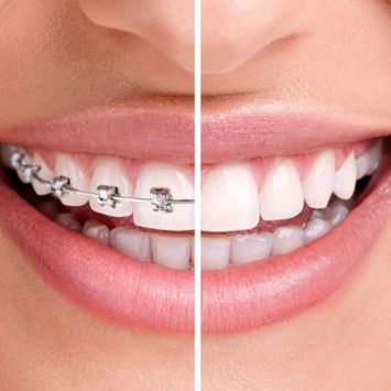 aparate dentare dependentcare