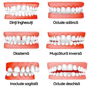 aparat dentar copii