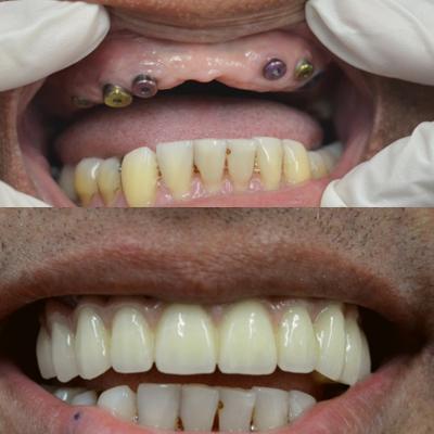 implant dentar-cum arata