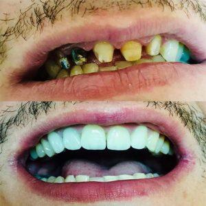 inaintesi dupa coroana dentara dependentcare