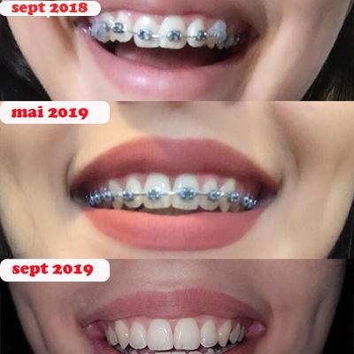 tip aparat dentar